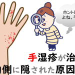 手湿疹の原因