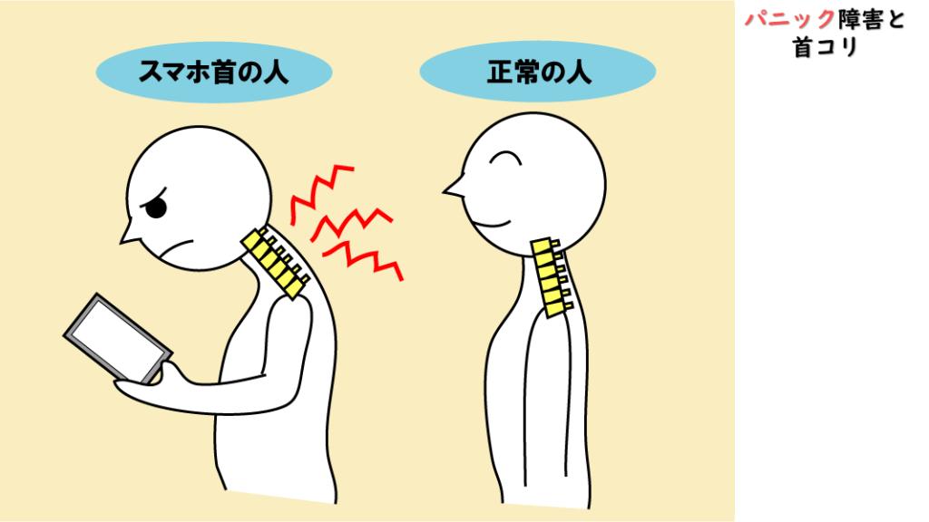 パニック障害は首が原因
