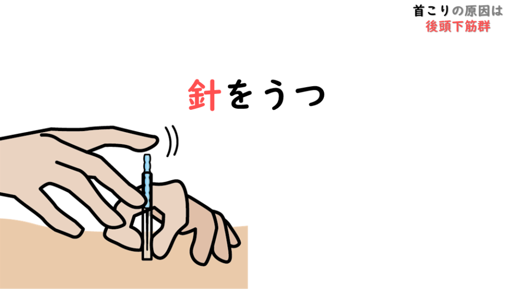 後頭下筋群(こうとうかきんぐん)と針